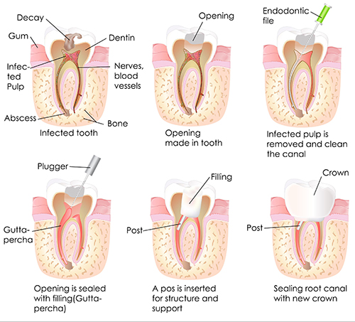 Root Canal Therapy in Andersonville